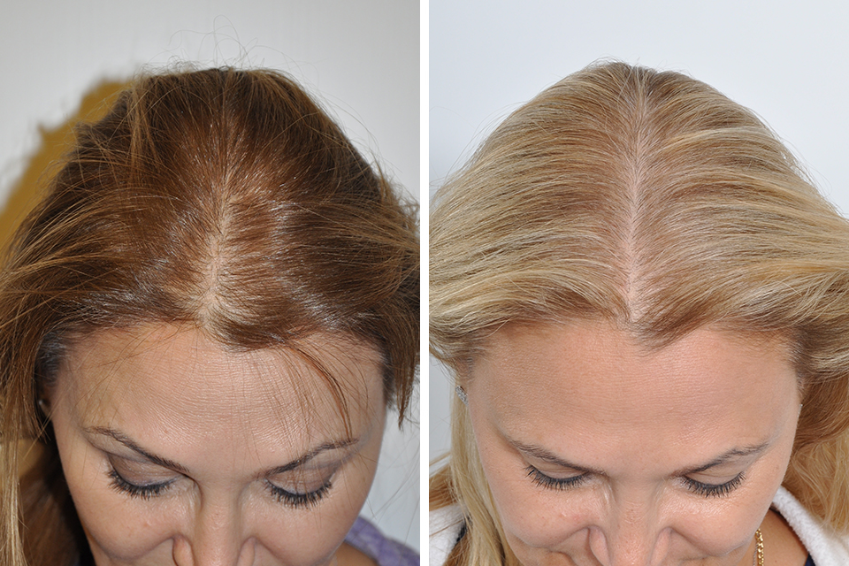 Hair Restoration Hair Transplant Surgery For Women In New
