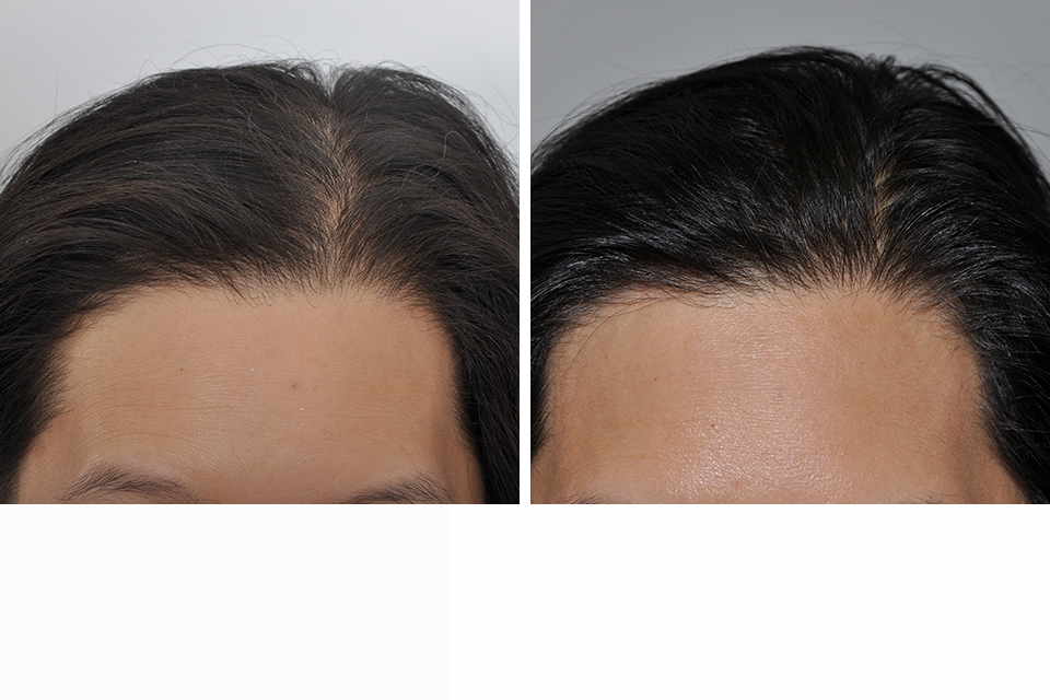 Natural Hair Restoration Techniques