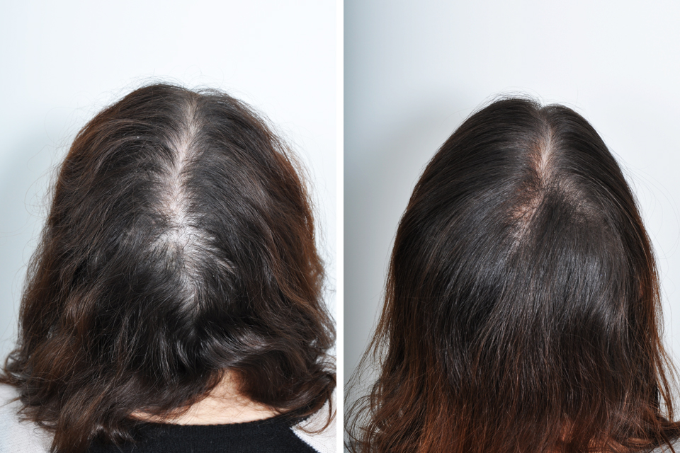 Hair Transplant Surgery for Women in New York City | David Rosenberg