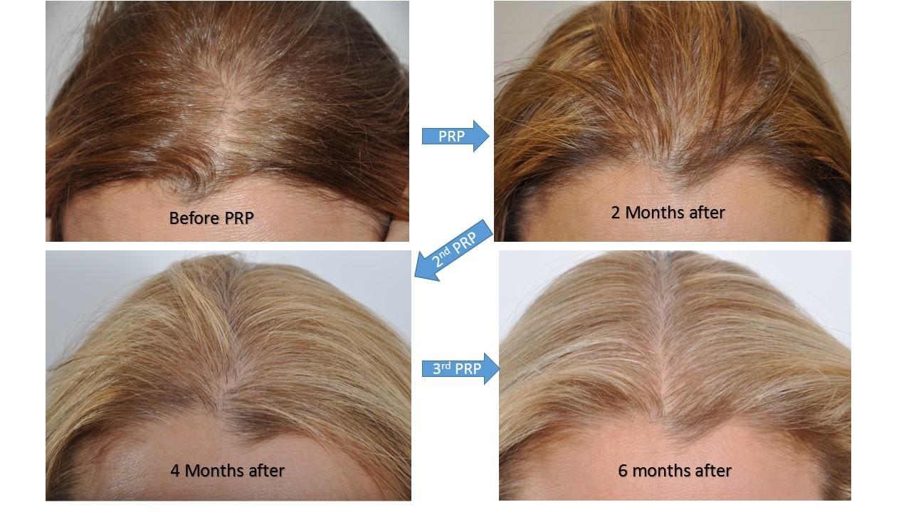 Hair Restoration Hair Transplant Surgery For Women In New York City