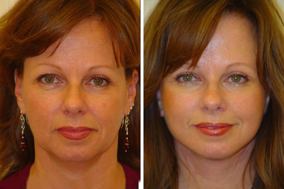 Endoscopic Brow Lift, Eyelid Surgery, Eye Lift for Women ...