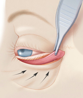 Elevation of the orbicularis muscle to support the eyelid.