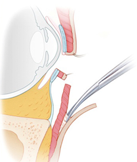 Development of the orbicularis muscle flap.
