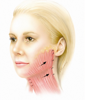 Dr. Rosenberg's facelift has tightened the platysma muscle with dissolvable stitches placed under the skin. This restored the foundation of the face and redefined the jaw line and neck.