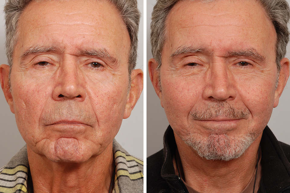 Bad male celebrity face lifts