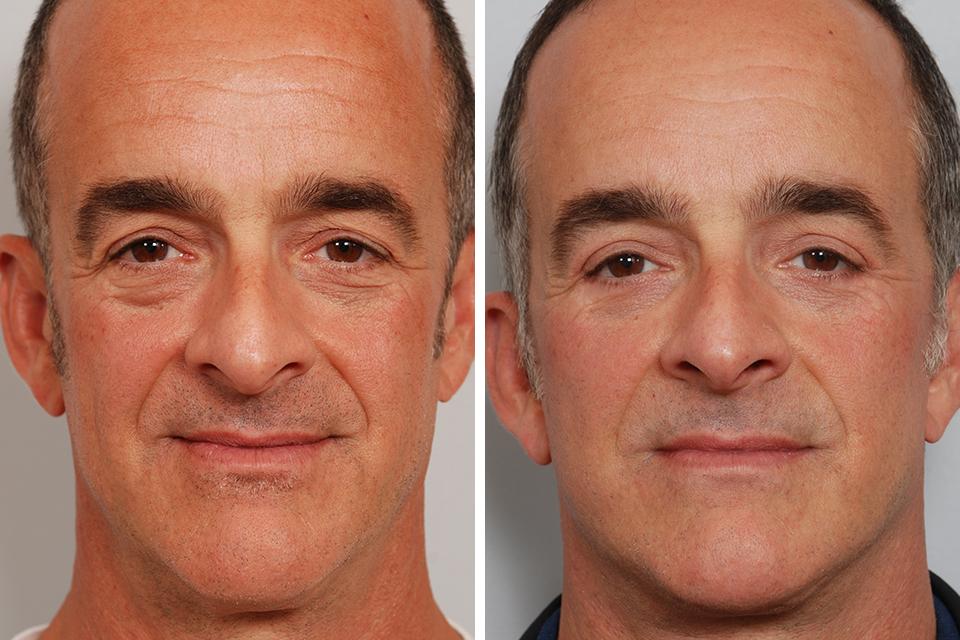 Blepharoplasty, Eyelid Surgery, Eye Lift for Men in New York City