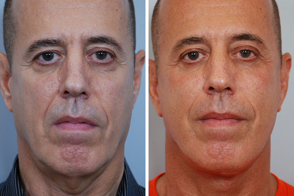 Endoscopic Brow Lift, Forehead Lift for Men in New York ...