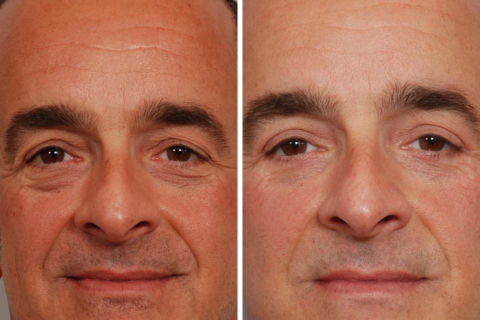 Blepharoplasty 76 David Rosenberg M D Pllc