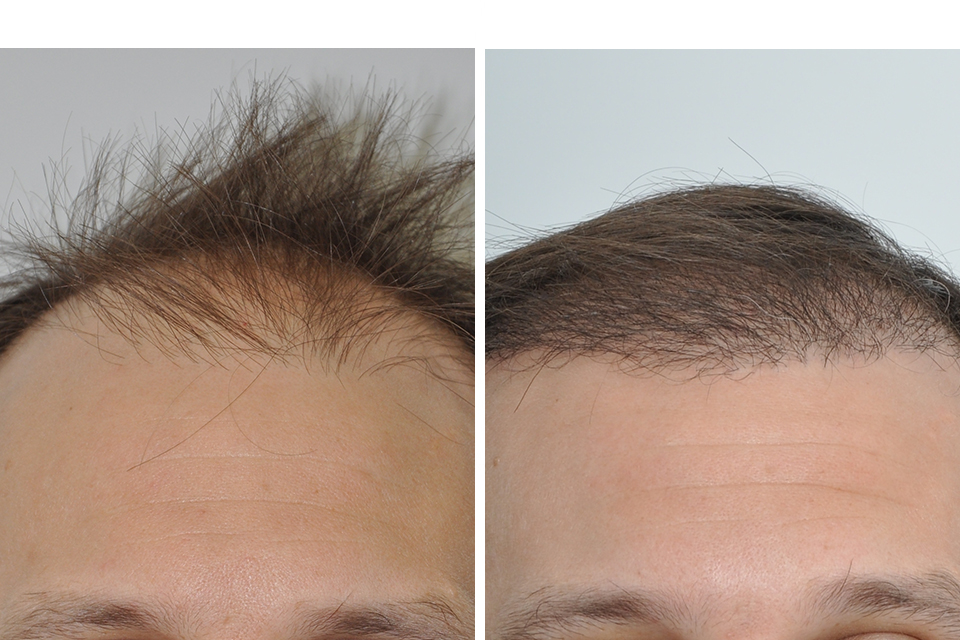 Before And After Hair Transplant At Post Op Month 4