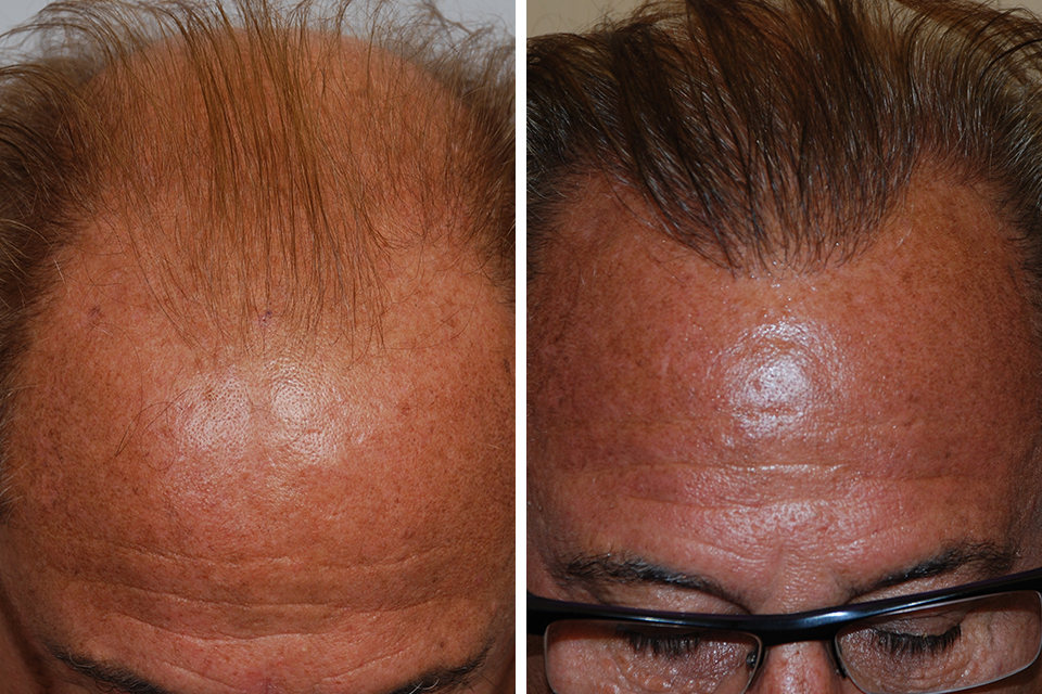 Right Side Before Hair Transplant Surgery By Steven Gabel M D