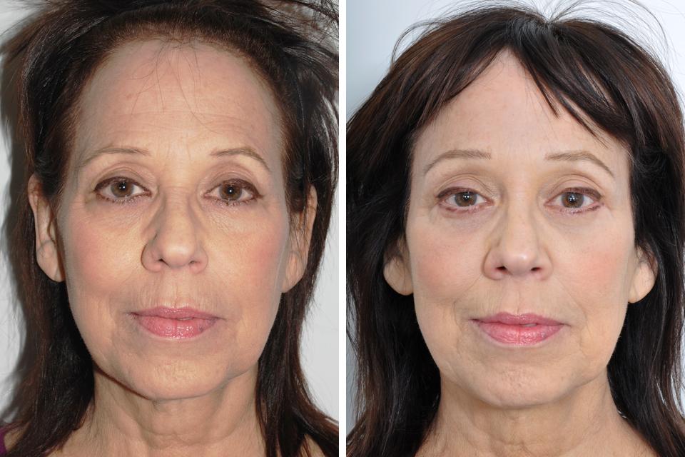 Celebrities For Celebrity Blepharoplasty Before After ...