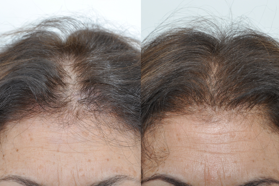 Before And 4 Months After Hair Transplant