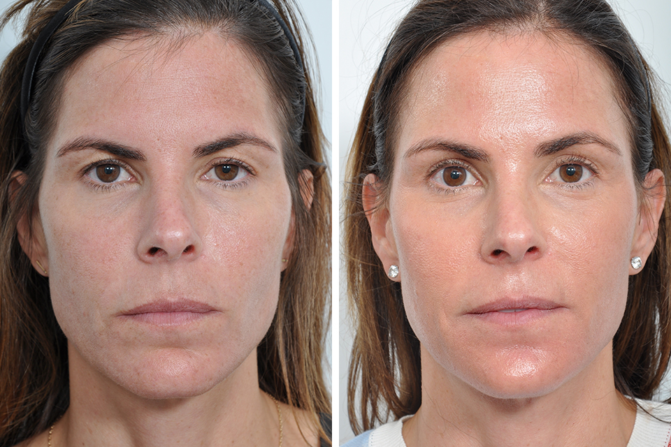 Endoscopic Brow Lift Forehead Lift For Women In New York