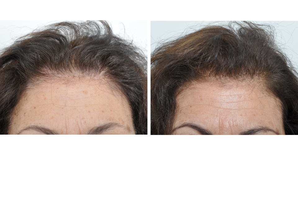 Hair Restoration Hair Transplant Surgery For Women In New York City