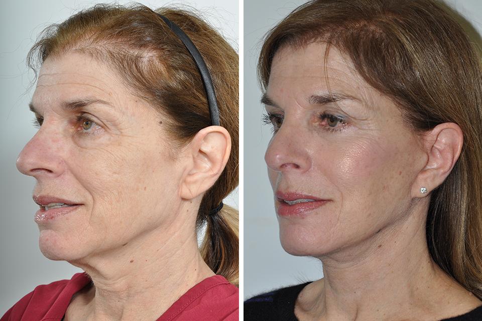 Rhytidectomy, Facelift, Neck Lift for Women in New York City   David