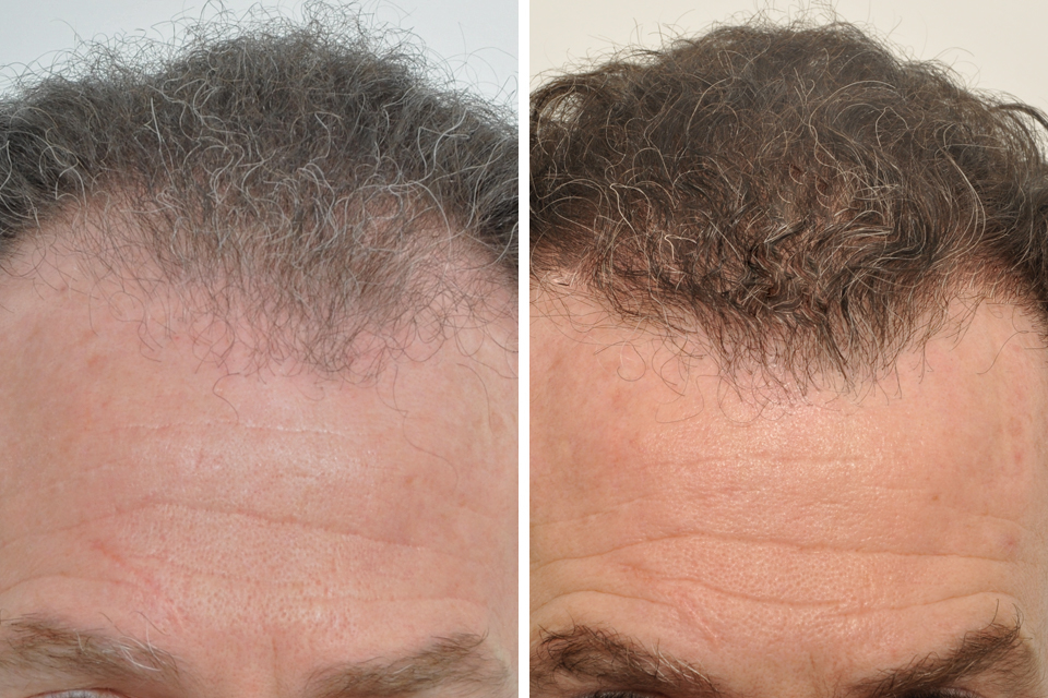 Before And After Hair Transplant At 9 Months Post Op
