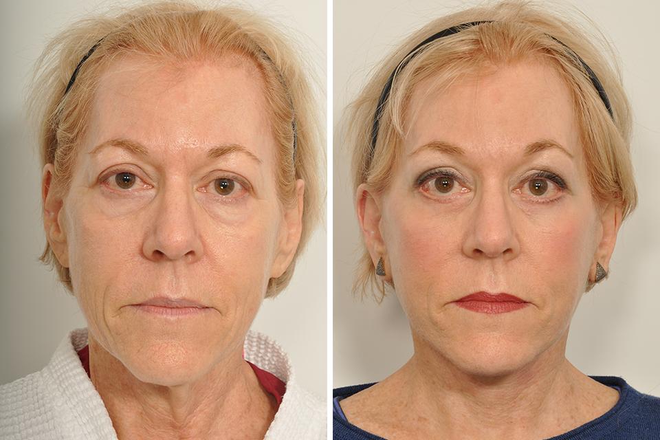 Rhytidectomy, Facelift, Neck Lift for Women in New York City