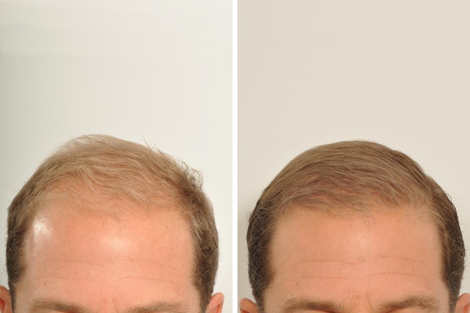 Hair Restoration, Hair Transplant Surgery for Men in New