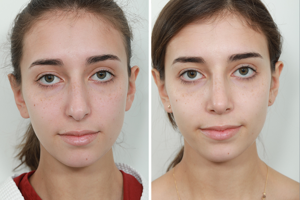 Top Celebrity Rhinoplasty Surgeon Natural Looking Nose Job Surgery For Women Best Revision And Rapid Recovery Rhinoplasty Surgeon In Manhattan Upper East Side New York City Connecticut Washington Boston And New Jersey