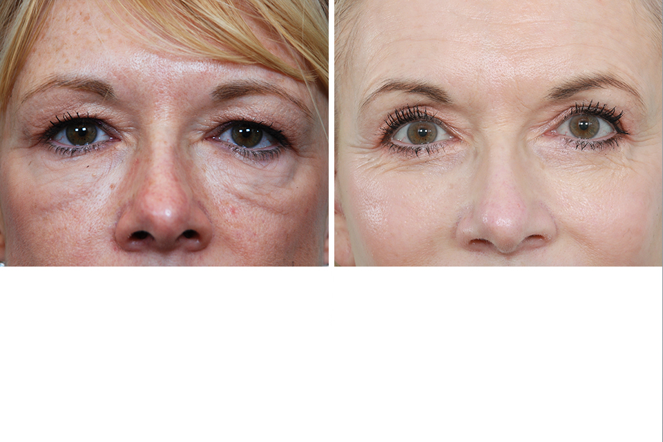 Endoscopic Brow Lift, Eyelid Surgery, Eye Lift for Women in