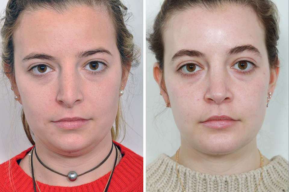 Rhinoplasty, Nose Surgery, Nose Job for Women in New York City
